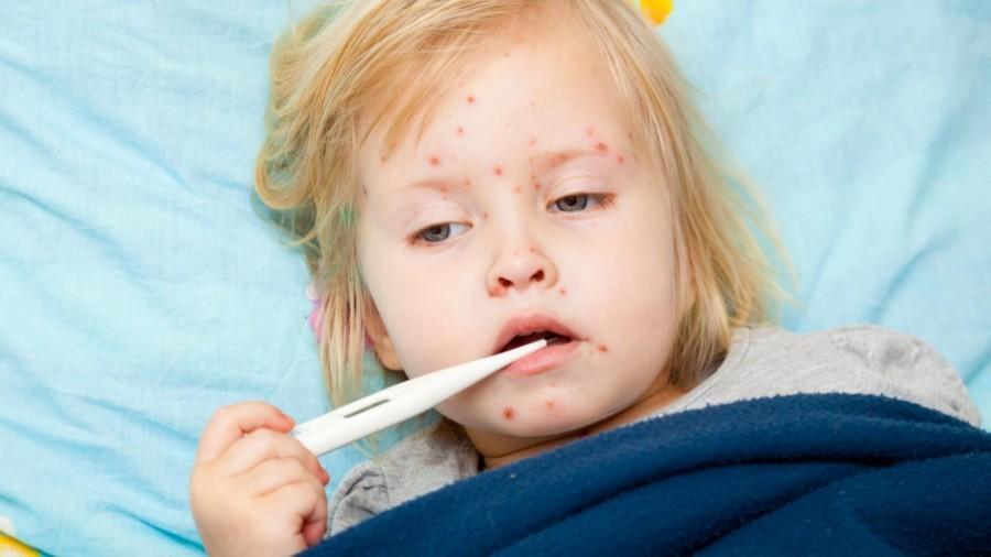 У Запорізькій області зафіксували новий випадок захворювання на кір
