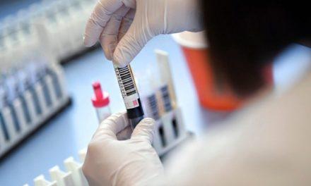 У курортному Бердянську скачок захворювання коронавірусом