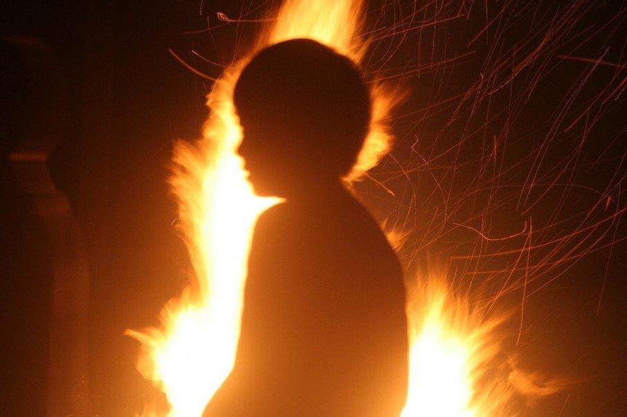 На Запоріжжі діти заради розваги підпалили однолітка, хлопець в реанімації
