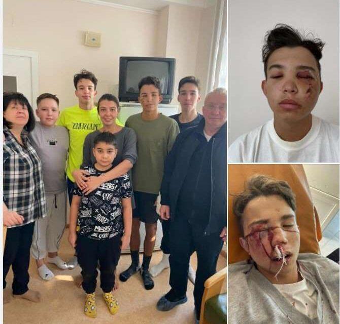Син колишнього голови Запорізької ОДА потрапив в серйозну аварію – ЗМІ – фото