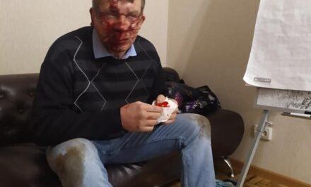 Колега депутата, якого сьогодні побили в Запоріжжі, опублікувала світлини чоловіка після нападу