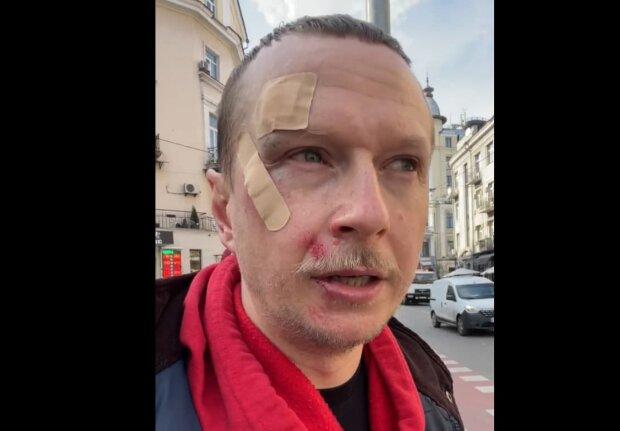 В столиці відомому українському ведучому бризнули в обличчя з балончика – відео