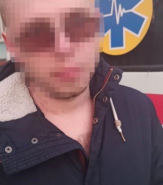 У Запоріжжі чоловік зателефонував до поліції й розповів, що тримає гранту – фото